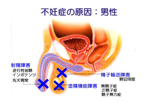不妊症の原因:男性