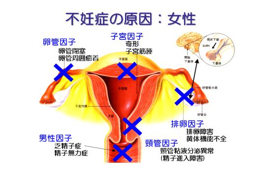 不妊症の原因:女性