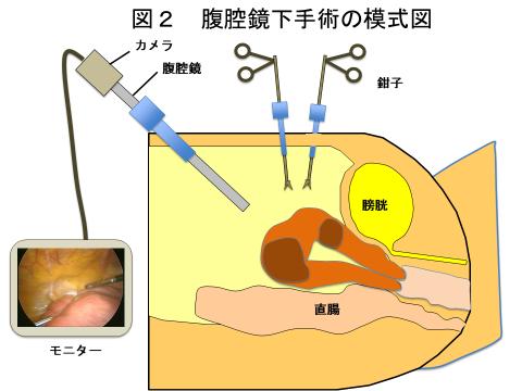 図2 腹腔鏡下手術の模式図