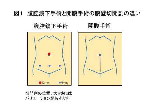 図1 腹腔鏡下手術と開腹手術の腹壁切開創の違い